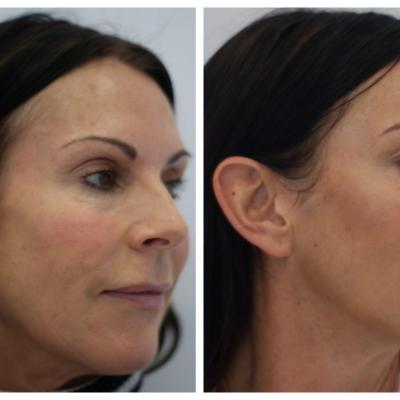 Full  face treatment applying MD codes